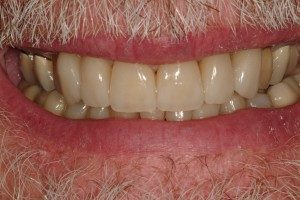 Photo of teeth straightened by clear othodontic aligners.