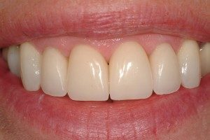 Photo of teeth repaired by crowns.