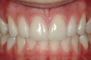 Photo of front teeth repaired by tooth bonding.