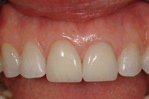 Photo of teeth repaired with veneers.