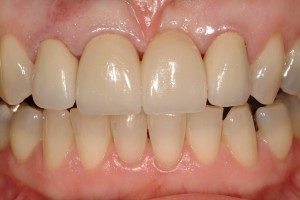 Photo of teeth repaired by a dental implant.