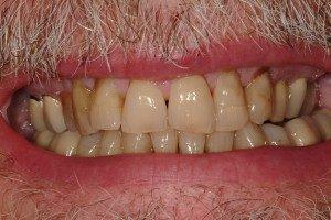 Photo of crooked teeth.