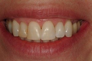 Photo of front teeth before being repaired by crowns.