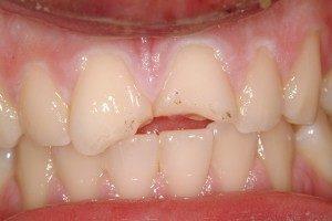 Photo of broken front teeth.