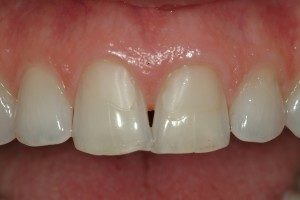 Photo of front teeth with a gap between them.