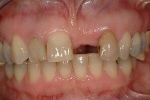 Photo of a missing front tooth.